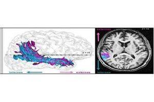 """Schizophrénie : d'où viennent """"les voix"""" ?"""