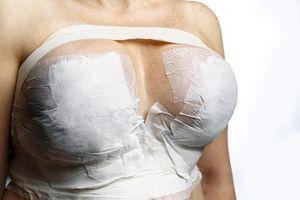 Prothèses mammaires : vers un nouveau scandale sanitaire ?