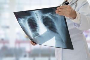 Espérance de vie: grippe et cancers expliquent le ralentissement des progrès
