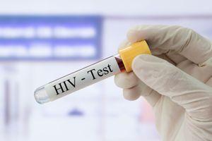 VIH : un patient séropositif en rémission sans subir de greffe de moelle