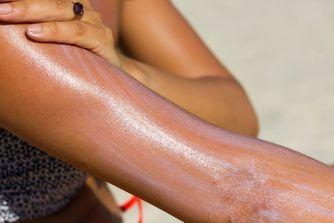 10 remèdes naturels contre les coups de soleil