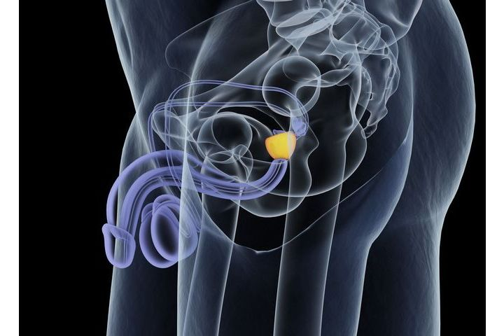 Prostate Cancer - Symptoms, Diagnosis and Treatment ...