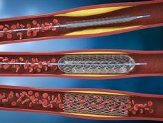 Angioplastie et pose de stent : définition et déroulement
