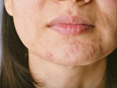 L'acné kystique chez l'adulte : comment en finir ?