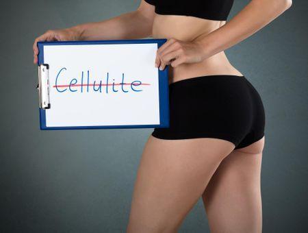Comment se forme la cellulite ?