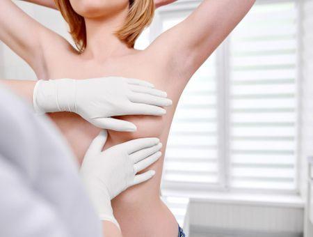 Chirurgie des mamelons invaginés ou ombiliqués : objectifs, indications et remboursement