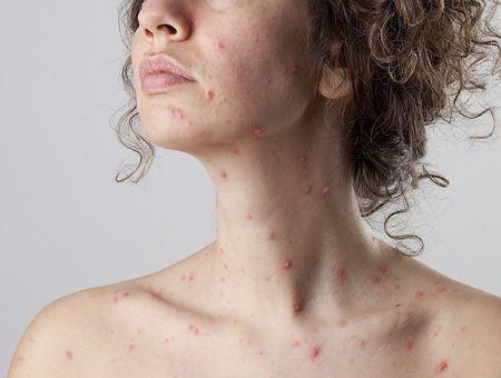 La varicelle de l'adulte