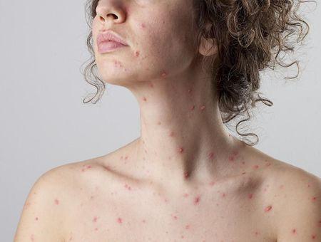 La varicelle chez l'adulte
