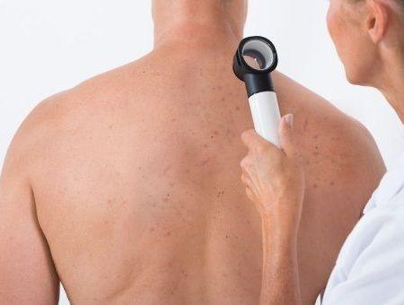 L'acné préviendrait le cancer de la peau