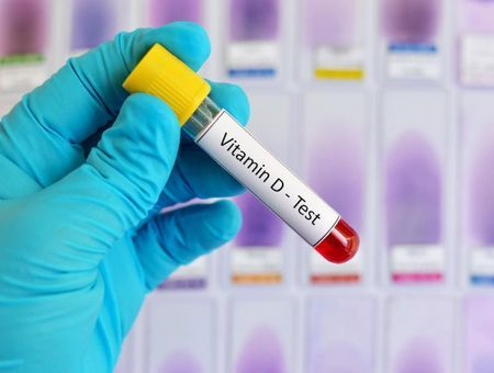 Dosage de la vitamine D