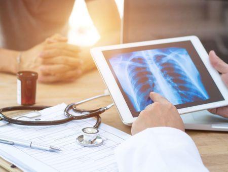 Tabac et cancer : des risques encore trop sous-estimés