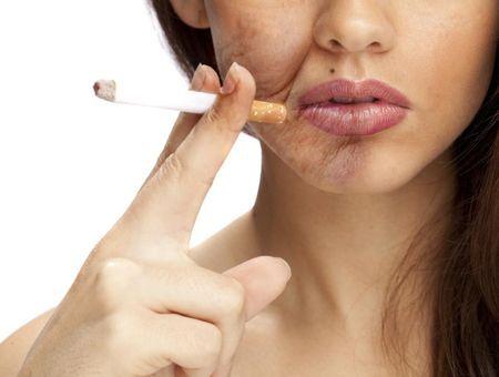 Quels sont les effets du tabac sur la peau ?