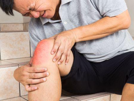 Arthrose : comment traiter la douleur ?