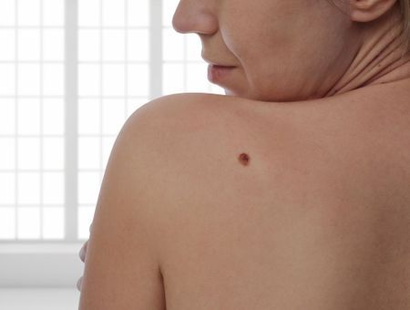 Cancer de la peau : les signes qui doivent alerter