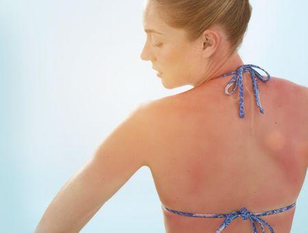 Coup de soleil : les conseils d'une dermatologue pour bien dormir la nuit