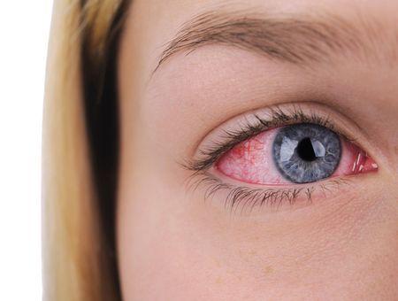 L'herpès oculaire
