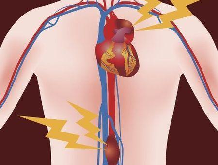 L'anévrisme de l'aorte : causes, symptômes et traitement