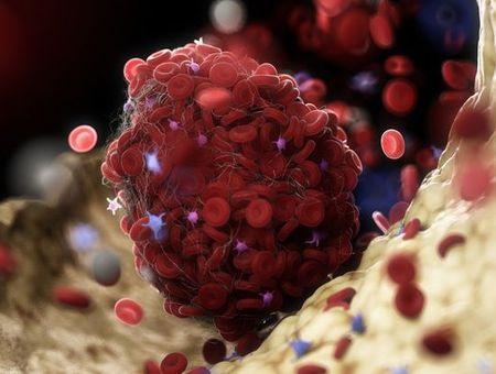 Thrombose veineuse : risque, symptômes, traitement