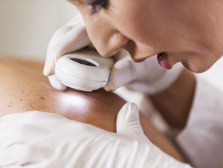 Maladies de peau : elles touchent 1 Français sur 3