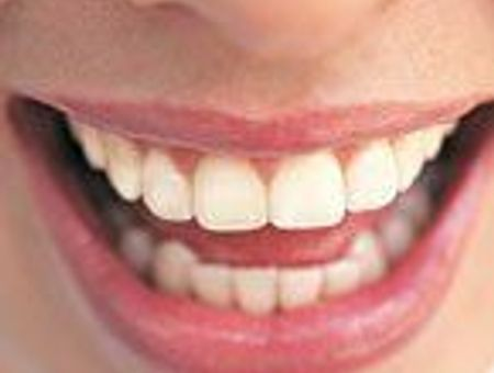 Atlas anatomique : les dents