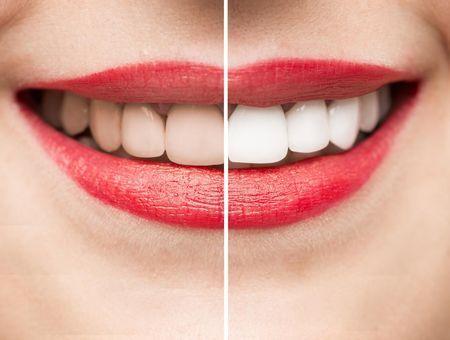 Facettes dentaires : prix, durée de vie, entretien