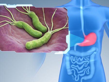 Helicobacter pylori : symptômes, transmission, test et traitements