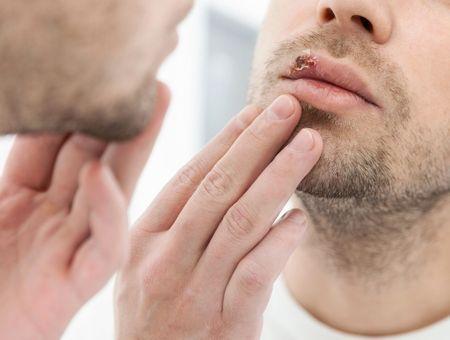 L'homéopathie contre les problèmes de bouche ?