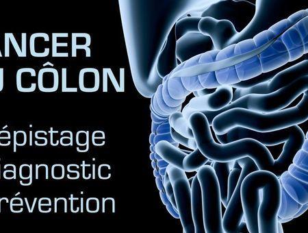 Cancer du côlon : dépistage, diagnostic et prévention