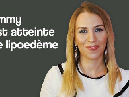 Emmy, youtubeuse, est atteinte de lipoedème