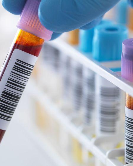VIH : le dépistage bientôt gratuit pour tous ?