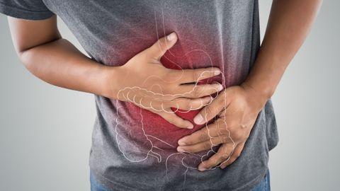 Cancer du côlon : quels sont vos risques ?