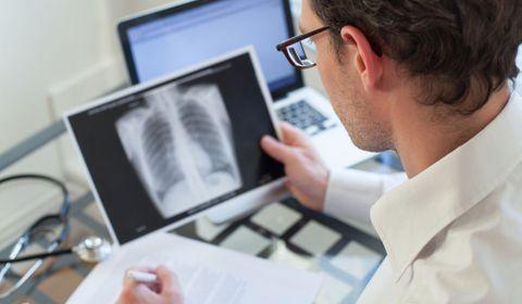 cancer du poumon en chiffres