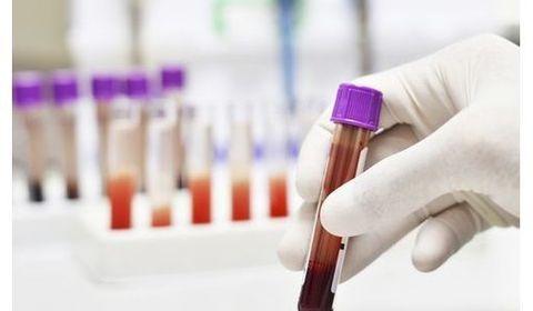 ADN circulant - Cancer du sang