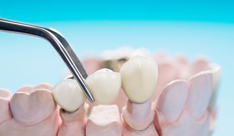 Qu'est-ce qu'un bridge dentaire ?