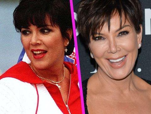 Kris Jenner - Stars : les pires ratés de la chirurgie esthétique !