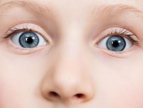 Test : dépister l'amblyopie unilatérale d'un bébé