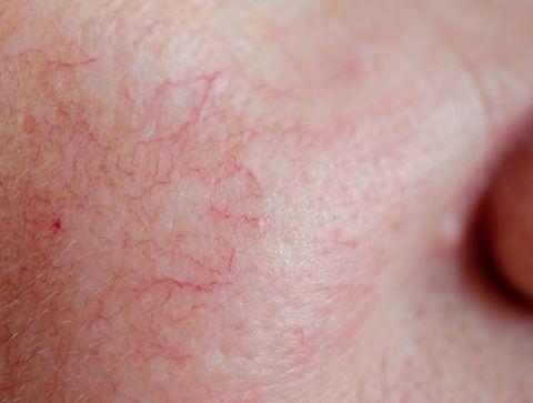 Rosacée (couperose) : symptômes, diagnostic et traitements
