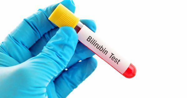 Bilirubine Dosage Sanguin De La Bilirubine Interpretation Des Resultats