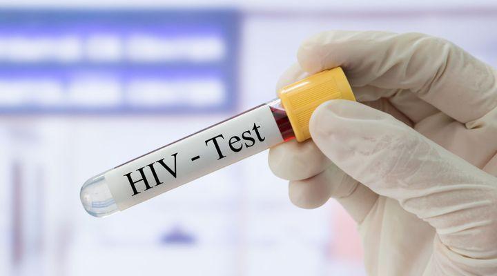 Un patient porteur du virus du sida en rémission sans greffe de moelle