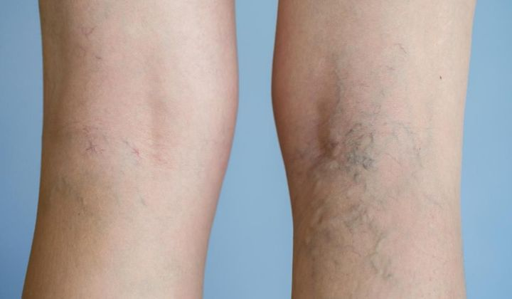 varices jambes causes