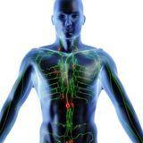 Un cancer du système lymphatique