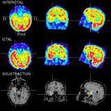 Point actuel sur la recherche et les traitements de l'épilepsie