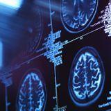 Prévenir la migraine grâce à la neurostimulation