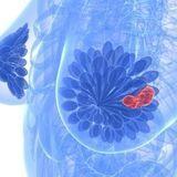 Cancer du sein et gros bras : vers une alternative pour certaines patientes ?