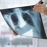 Le point sur le dépistage de la tuberculose