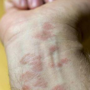 Des lésions cutanées après la prise d'un médicament