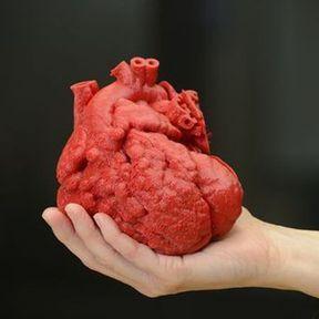L'impression 3D sauve la vie d'un bébé atteint de malformations cardiaques