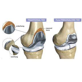 Une prothèse de genou sur-mesure