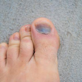 L'ongle noir : un simple hématome